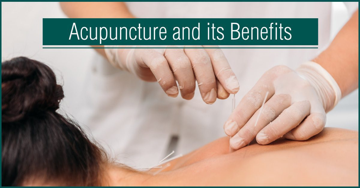 Acupuncture-and-its-Benefits